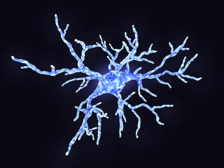 Image of neuroimmune cell-microglia