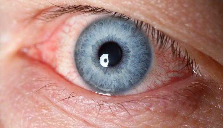 Close-up of a very bloodshot blue eye
