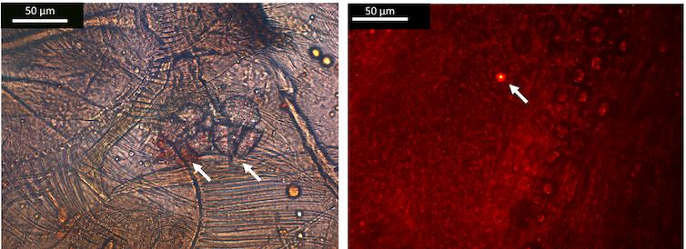 Fragmentos de microplásticos y nanoplásticos