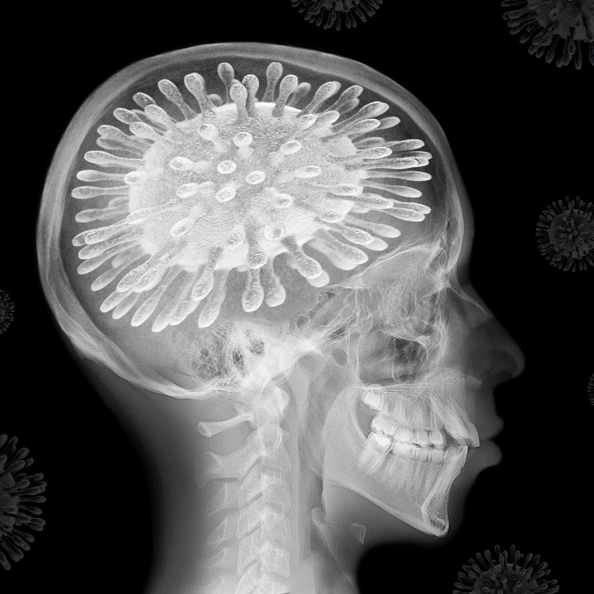 Coronavirus The Pandemic Is Changing Our Brains Here Are The Remedies