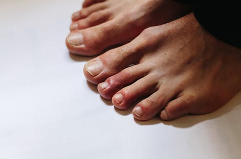Could it be COVID toes? Red toes