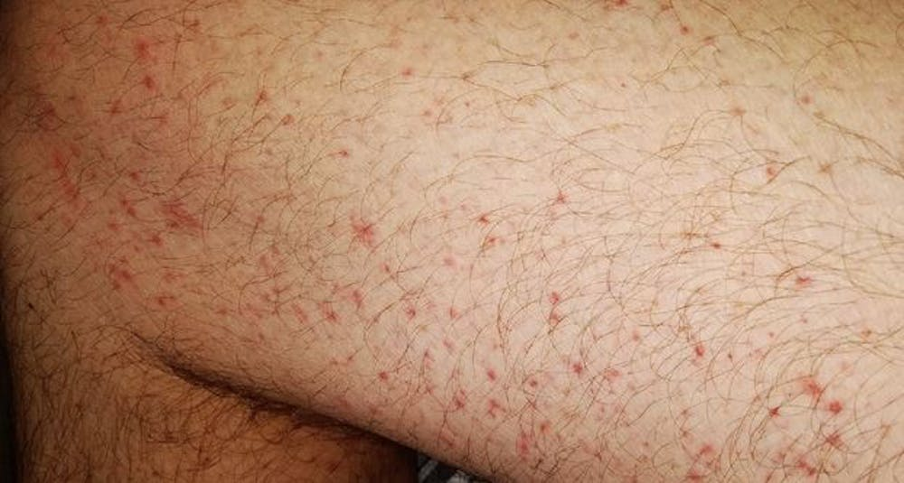 8 Ways The Coronavirus Can Affect Your Skin From Covid Toes To Rashes And Hair Loss