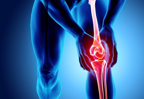 Graphic illustration of human knee joint