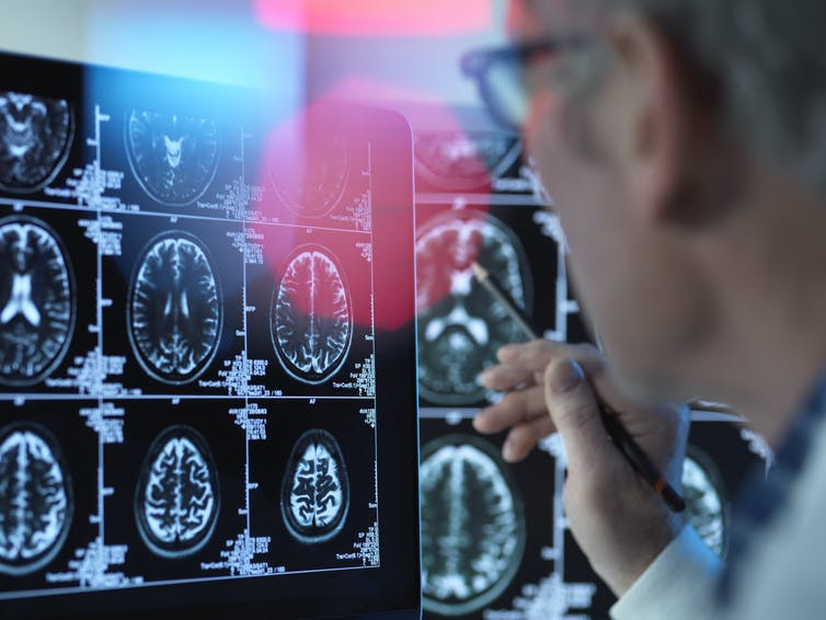 A doctor looks at images of a brain scan.