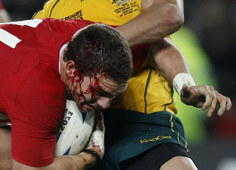 A man playing rugby with blood running from his head