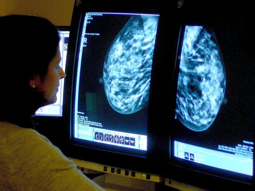 A woman looks at a medical scan on a screen.