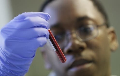 The blurred face of a young Black man wearing glasses in the background, with his gloved hand holding a vial of blood in the foreground.