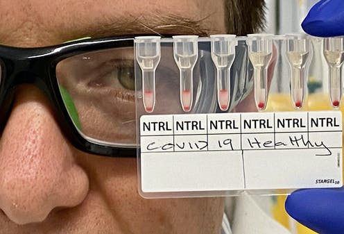 medical researchers looks at blood samples being used to test for COVID-19