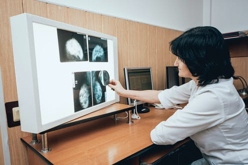 A doctor examining mammography test