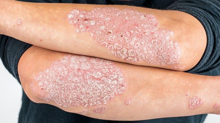 Psoriasis: la solución está en el sistema inmunitario