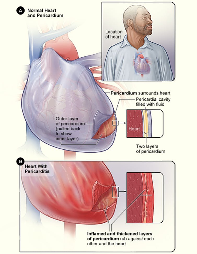 Illustration of a heart showing pericarditis