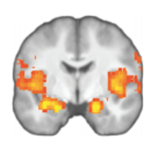 Image of the anterior insula.