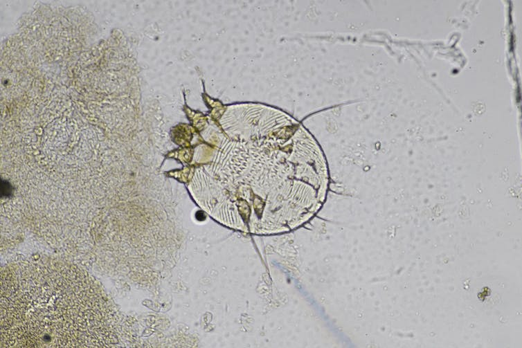 An image of a scabies mite.