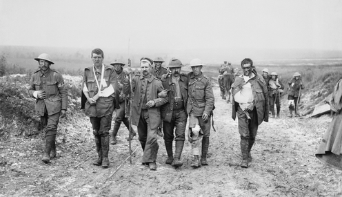 A group of wounded British and German World War I soldiers.