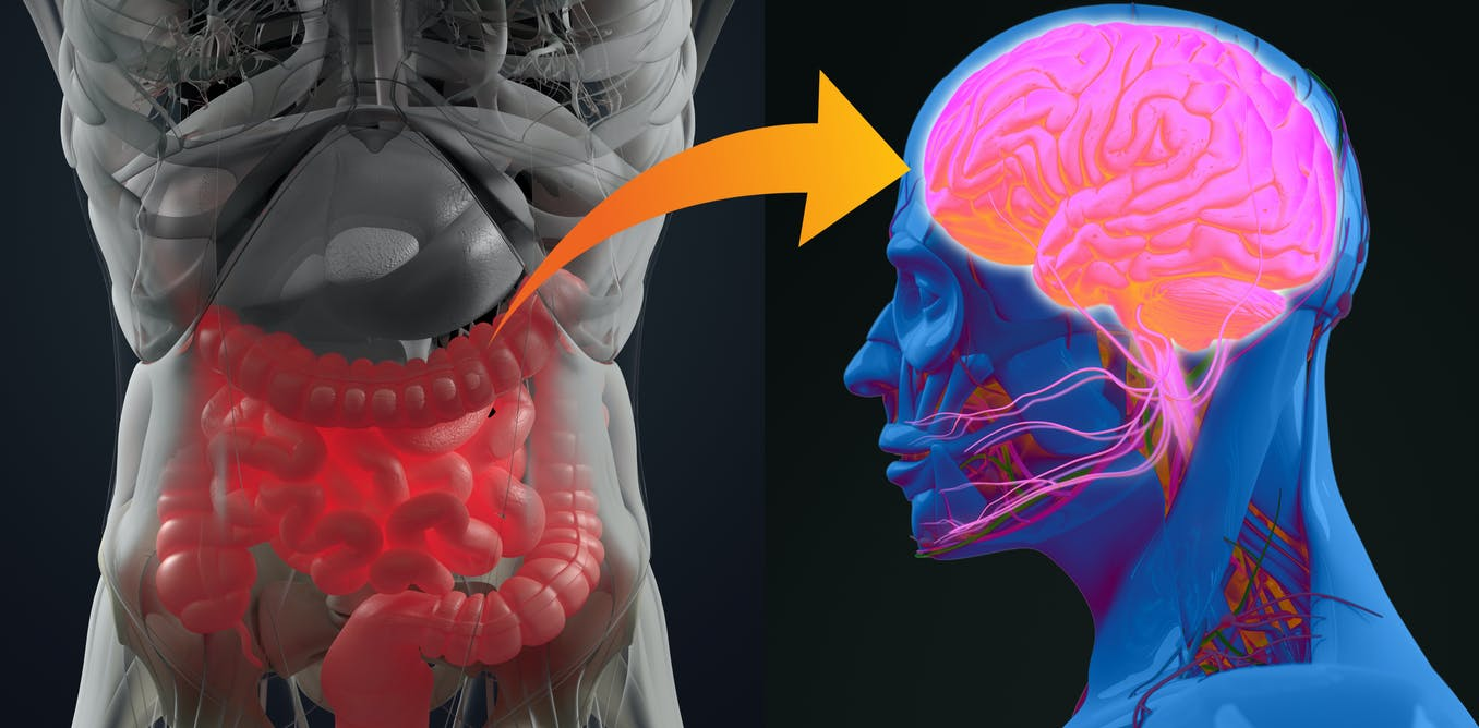 Your gut microbiome may be linked to dementia, Parkinson's disease and MS