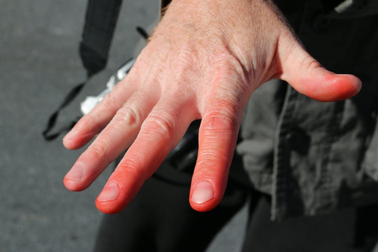 Fingers turned red by frostbite.