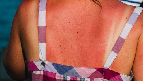 Severe sunburn on a person's back