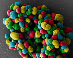 The other pandemic: Once-treatable diseases are growing resistant to antibiotics-2