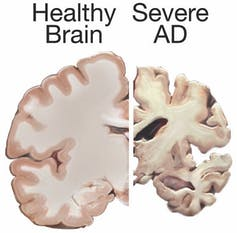 Illustration showing how a brain with Alzheimer's disease shrinks.