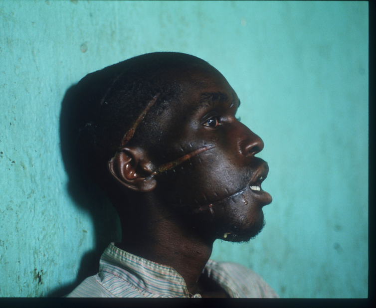 A man with four huge machete scars across his face. Part of his ear is missing.