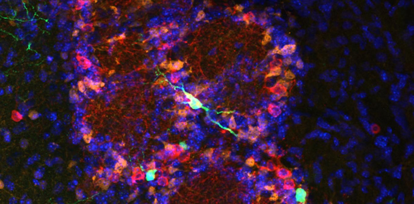 Images de science : Jusqu'à quel âge le cerveau fabrique-t-il des neurones ? - The Conversation FR