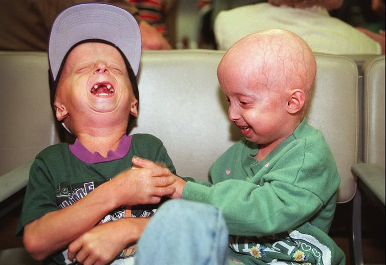 Two people with progeria.