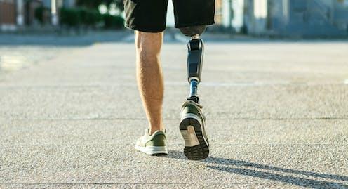 Homme avec une jambe artificielle.