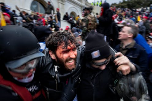 Trump supporter with a bloodied face grimacing in agony is helped out of a crowd at the Capitol by two protesters in riot gear