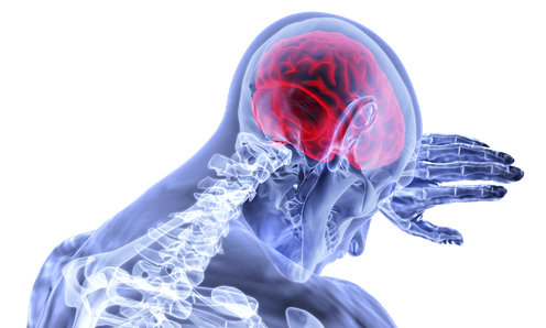 Les AVC ischémiques sont causés par une interruption du flux sanguin au cerveau.