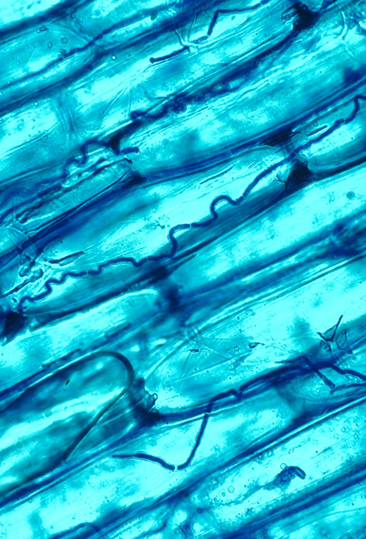 A microscopic organisms stained blue