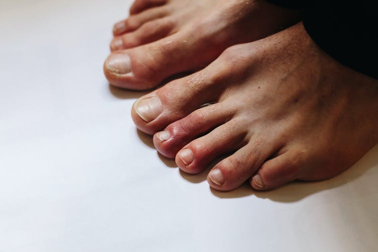A person with COVID toes