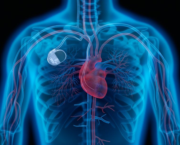 An illustration of an artificial pacemaker inside the body.