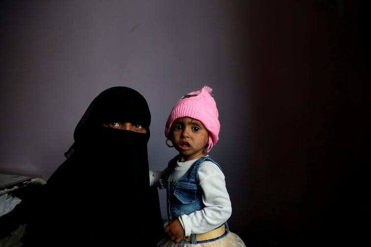 Woman in black burqa holds a very skinny child wearing a pink hat, in a hospital setting
