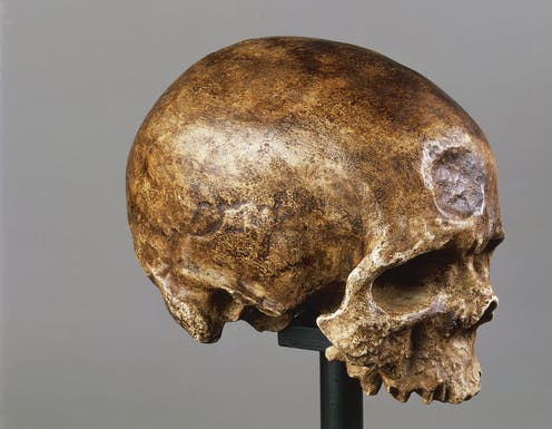 An old but intact skull