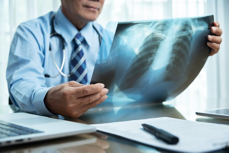A doctor looks at an x-ray of lungs.