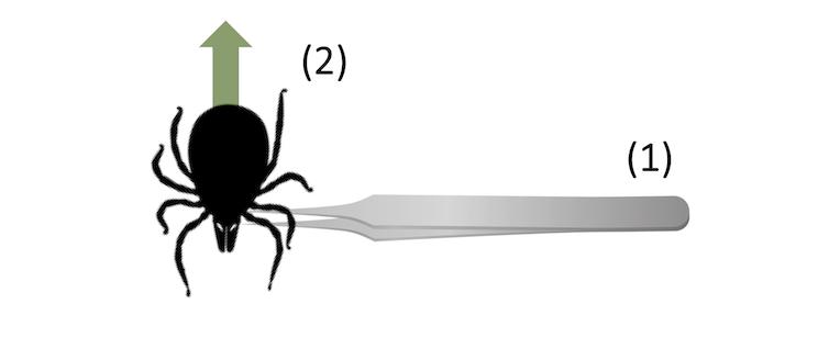 Infographique sur la façon de retirer une tique avec des pinces près de la tête d'une tique. Une flèche est dirigée vers le haut à partir de l'arrière de la tique
