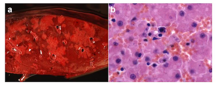 Hepatite infecciosa canina en oso pardo. Imaxe macroscópica (a) e microscópica (b) de fígado dun oso cuxa morte foi causada polo Adenovirus canino tipo 1 (CAdV-1), axente etiológico da hepatite infecciosa canina. Na imaxe microscópica obsérvase necrose de hepatocitos e infiltrado inflamatorio principalmente de linfocitos. Imaxe achegada polos autores.