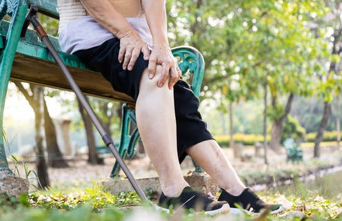 Woman with a painful knee joint