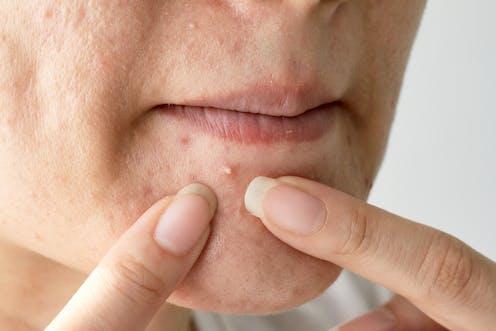 Una persona acerca sus dedos a un grano de acné bajo la boca.