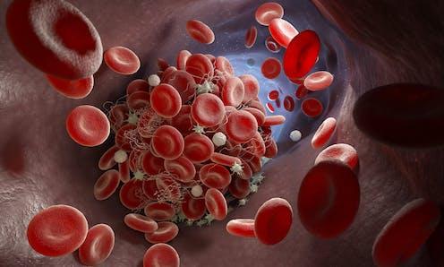 An illustration of a blood clot inside a blood vessel