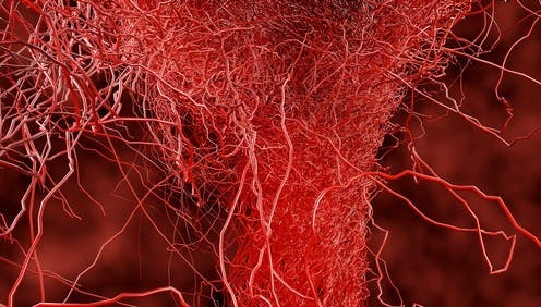 Capillaries filled with blood