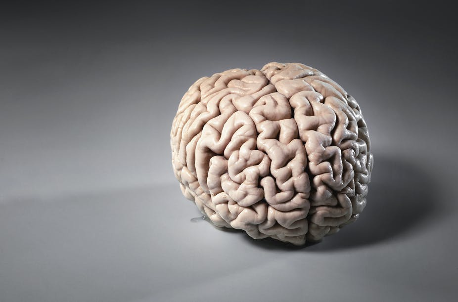 A photo of a human brain resting on a grey surface.