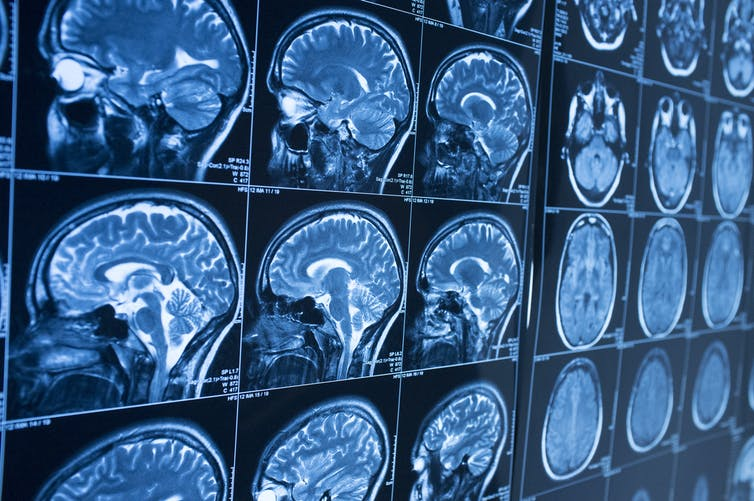 Brain MRI images showing multiple views