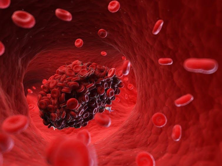 A blood clot inside a vein