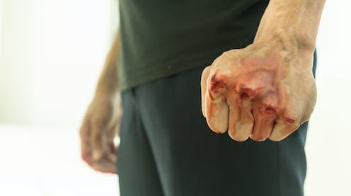 Puño tenso y sangrante de un hombre.