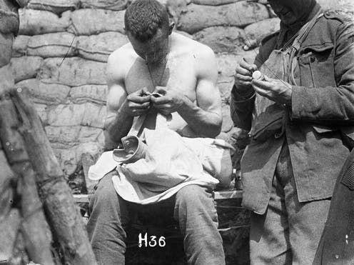 Anzacs looking for lice