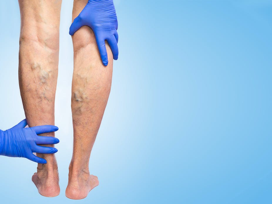A doctor examines a person's varicose veins in their legs.
