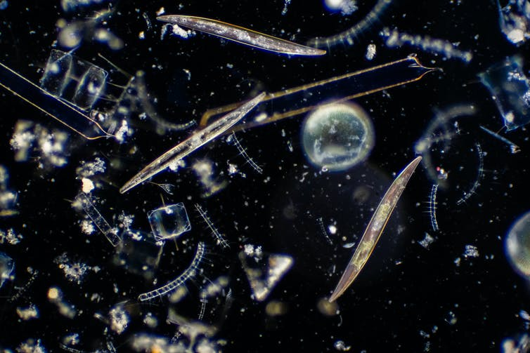 A few different types of phytoplankton under a microscope, in various shapes, with a black background.