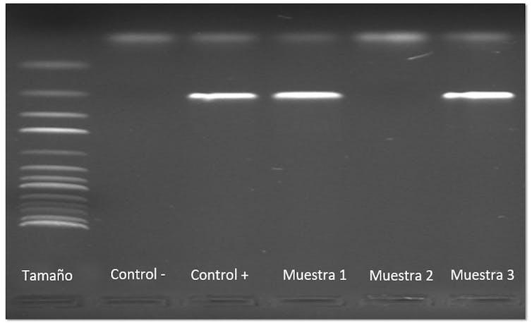 Ejemplo gel de agarosa con seis columnas de las muestras analizadas por PCR
