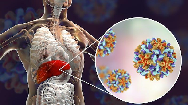 Así se previene y se trata la hepatitis B